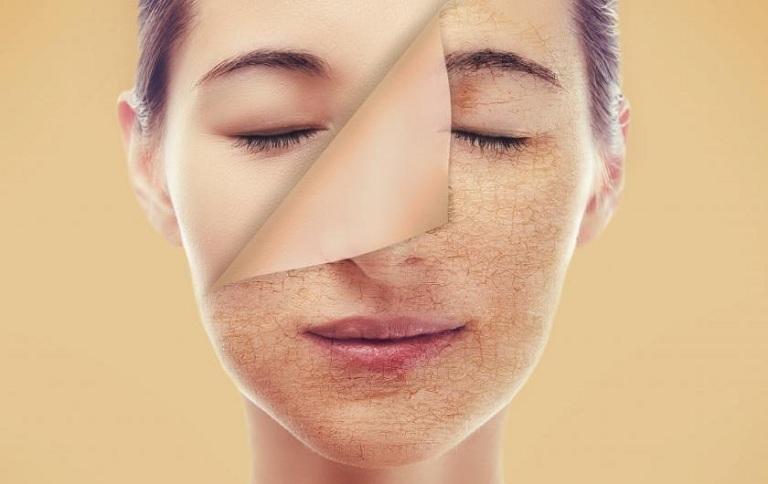 Sản phẩm giúp cho da mềm mại, cải thiện tình trạng khô da, bong tróc.