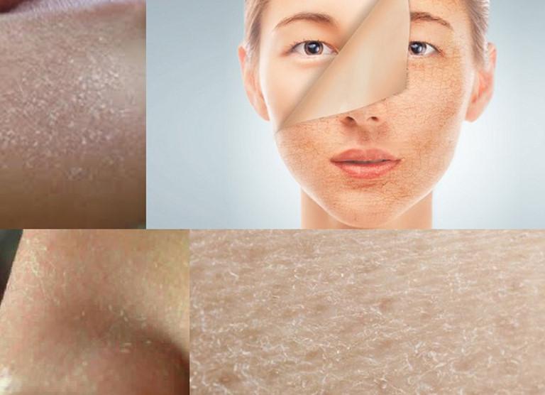 Da khô thường có biểu hiện bong tróc, nẻ da và đôi khi có cảm giác khô rát