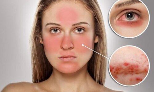 Da nhạy cảm là gì? Hướng dẫn chăm sóc da nhạy cảm hiệu quả nhất