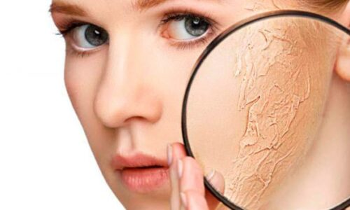 Da khô là gì? Hướng dẫn chăm sóc da khô hiệu quả nhất