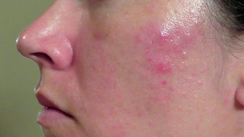 Allantoin có tác dụng làm dịu da