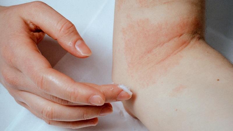 Bột yến mạch keo giúp chống lại các vi khuẩn và nấm vì dụ như vết chàm