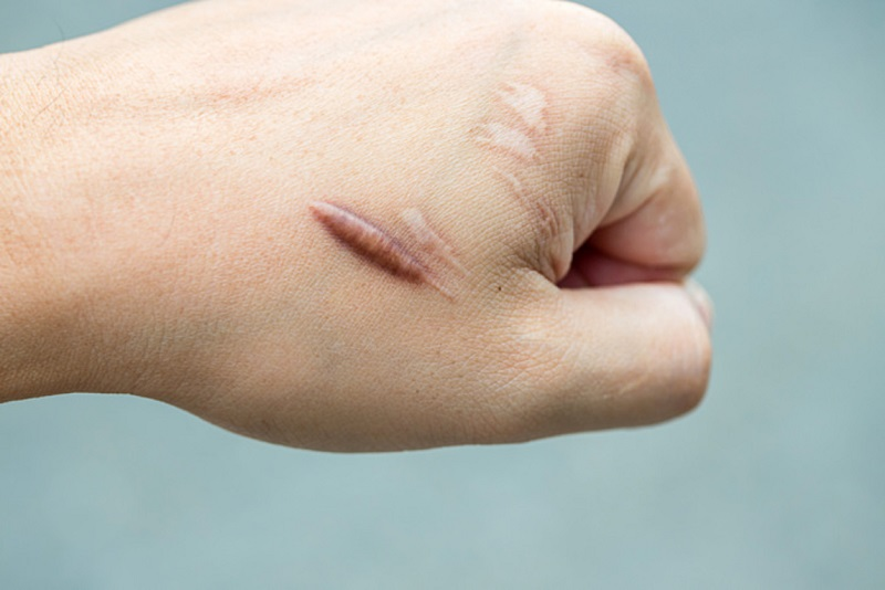 Làm sáng vết sẹo là một trong những công dụng phổ biển của dầu hạt nho