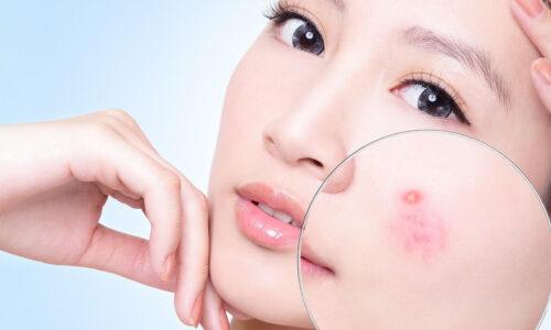 Benzoyl Peroxide là gì? Tại sao lại sử dụng Benzoyl Peroxide để điều trị mụn?