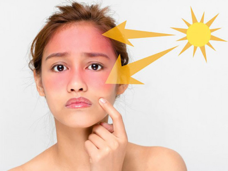 Bức xạ tia UV có thể gây tổn thương cho da