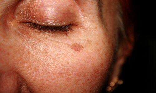 Peptide đồng là gì? Lợi ích của peptide đồng đối với da
