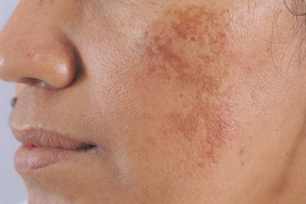 Ferulic acid còn có tác dụng ngăn chặn da hình thành các đốm nâu